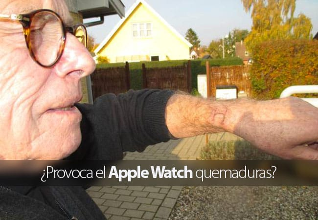 ¿Provoca el Apple Watch quemaduras?